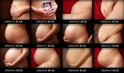 妊娠毒血症飲食